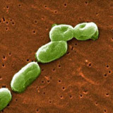 Bacteria mortal escapa de laboratorio de alta seguridad en EU