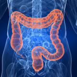 Aumentan casos de cáncer de colon en adultos jóvenes